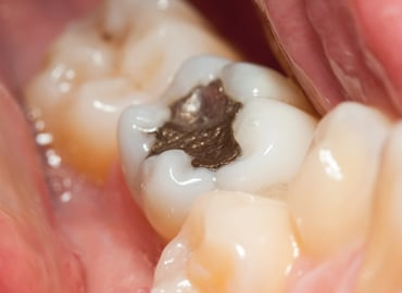 "The controversy surrounding dental amalgam (""silver fillings"")"