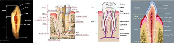 img_rootcanal01